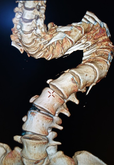 Zinash spine x-ray