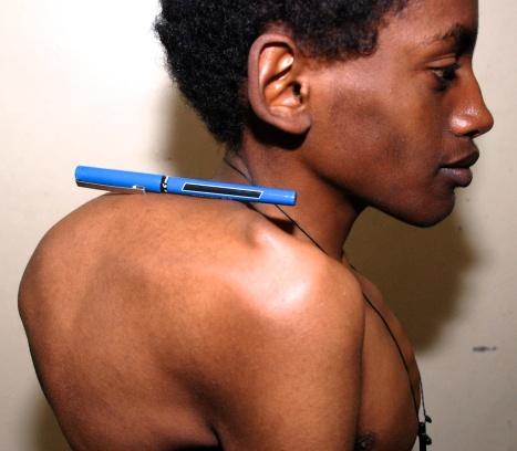 spine deformity 5