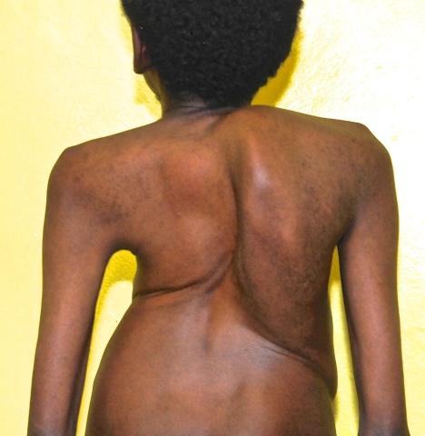 spine deformity 4