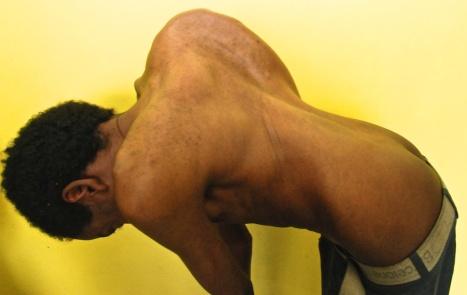 spine deformity 3