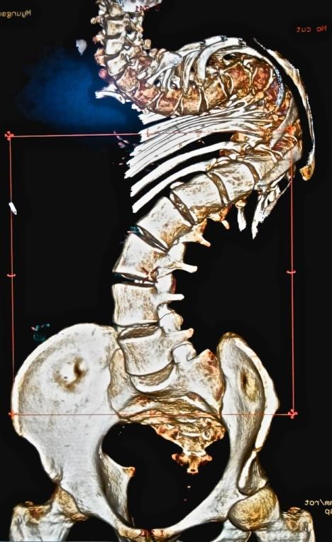 spine deformity 2