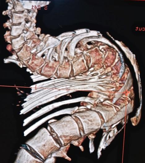 spine deformity 1