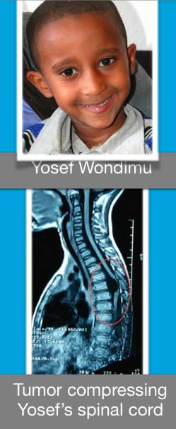 Yosef Wondimu