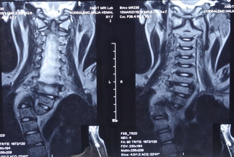 deformed spine x-rays