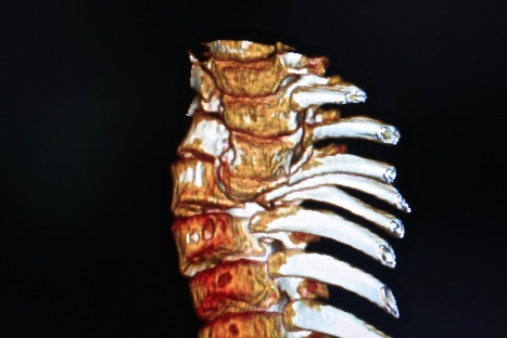 deformed spine x-rays 2