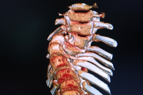 deformed spine x-rays 5