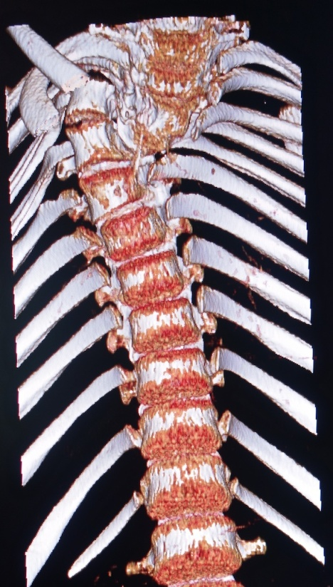 deformed spine x-rays 7