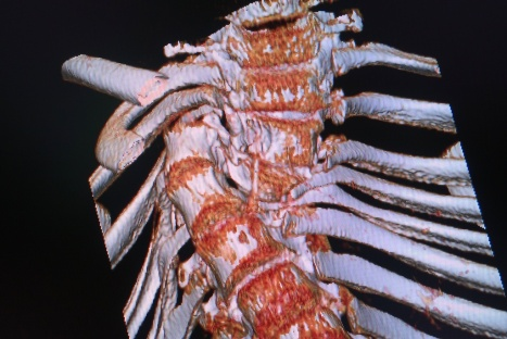 deformed spine x-rays 8