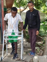 Habtamu-rick-hodes-ethiopian-spine-patient-13