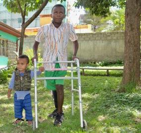 Habtamu-rick-hodes-ethiopian-spine-patient-14