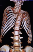 Habtamu-rick-hodes-ethiopian-spine-patient-4