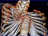 Habtamu-rick-hodes-ethiopian-spine-patient-5