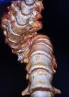 Habtamu-rick-hodes-ethiopian-spine-patient-7